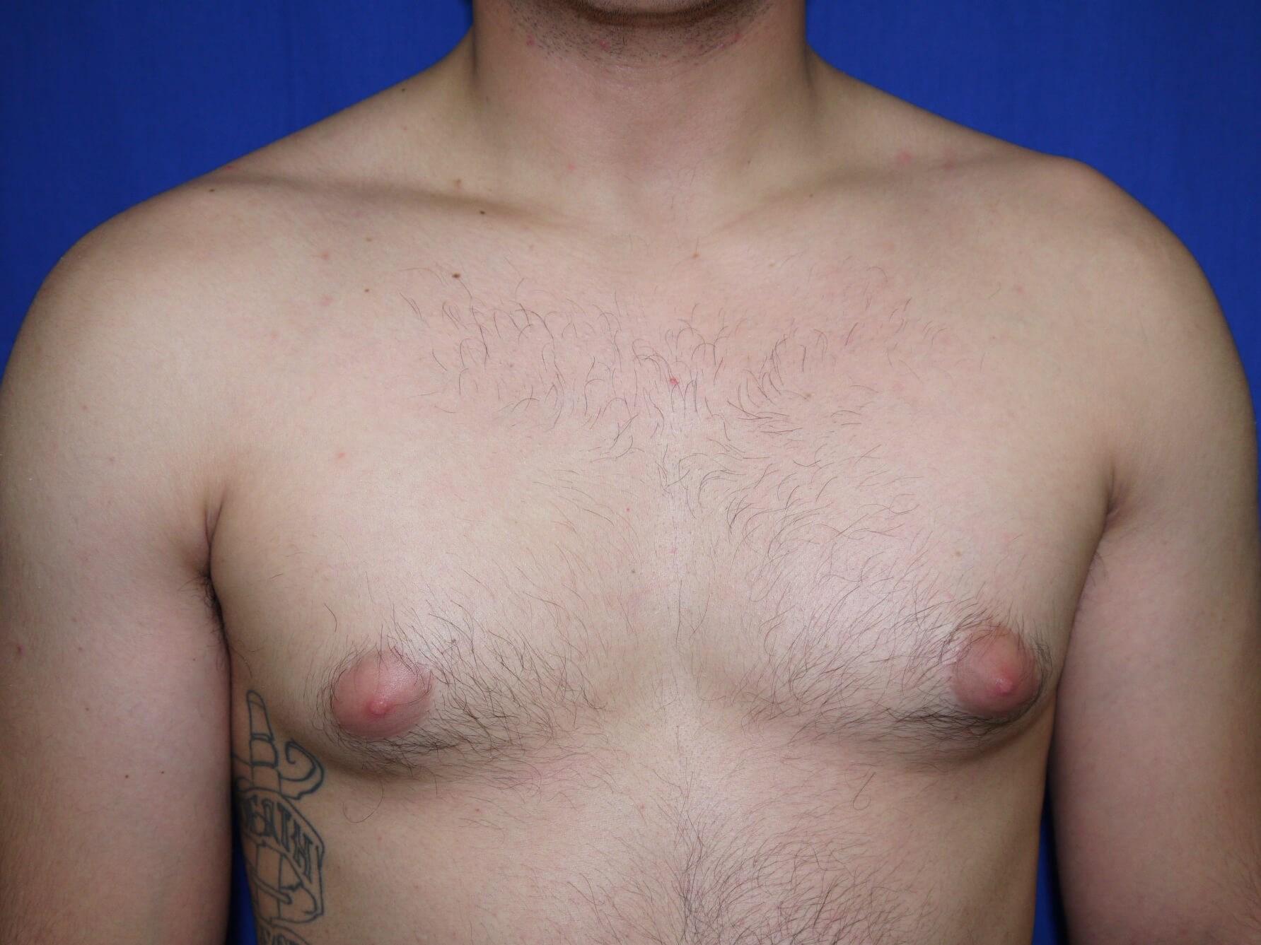 One Stitch Gynecomastia Before - Dr Mata