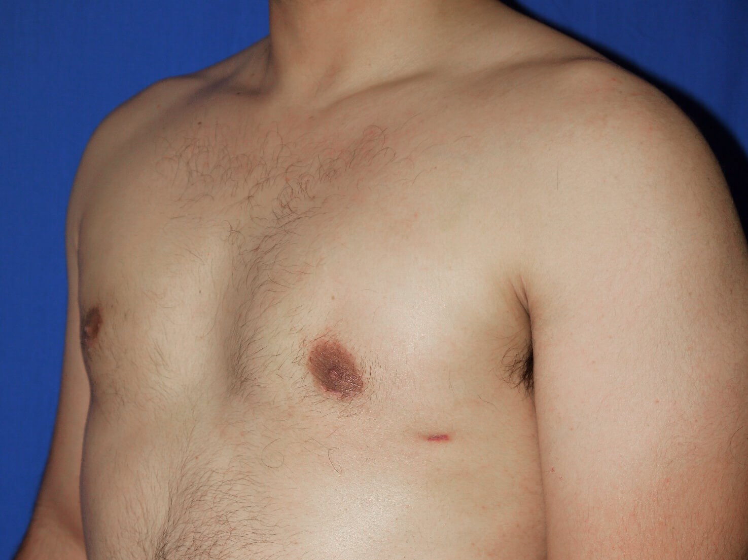 One Stitch Gynecomastia after - Left Oblique View