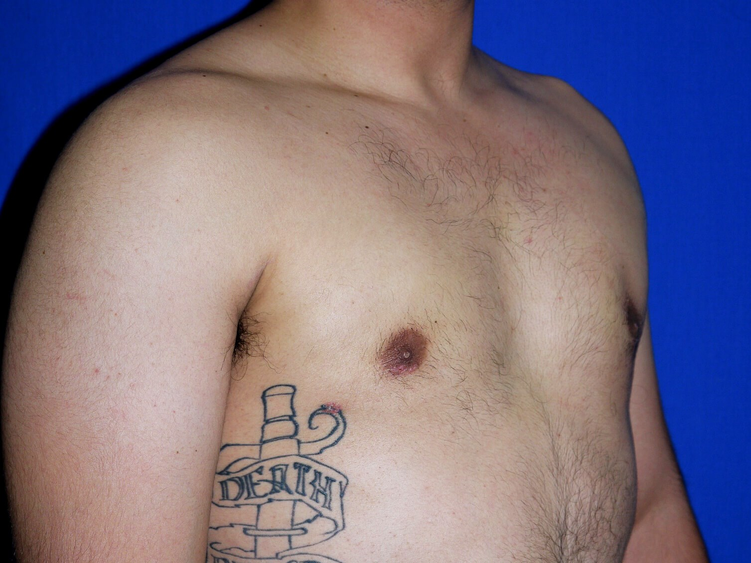 One Stitch Gynecomastia after - Right Oblique View