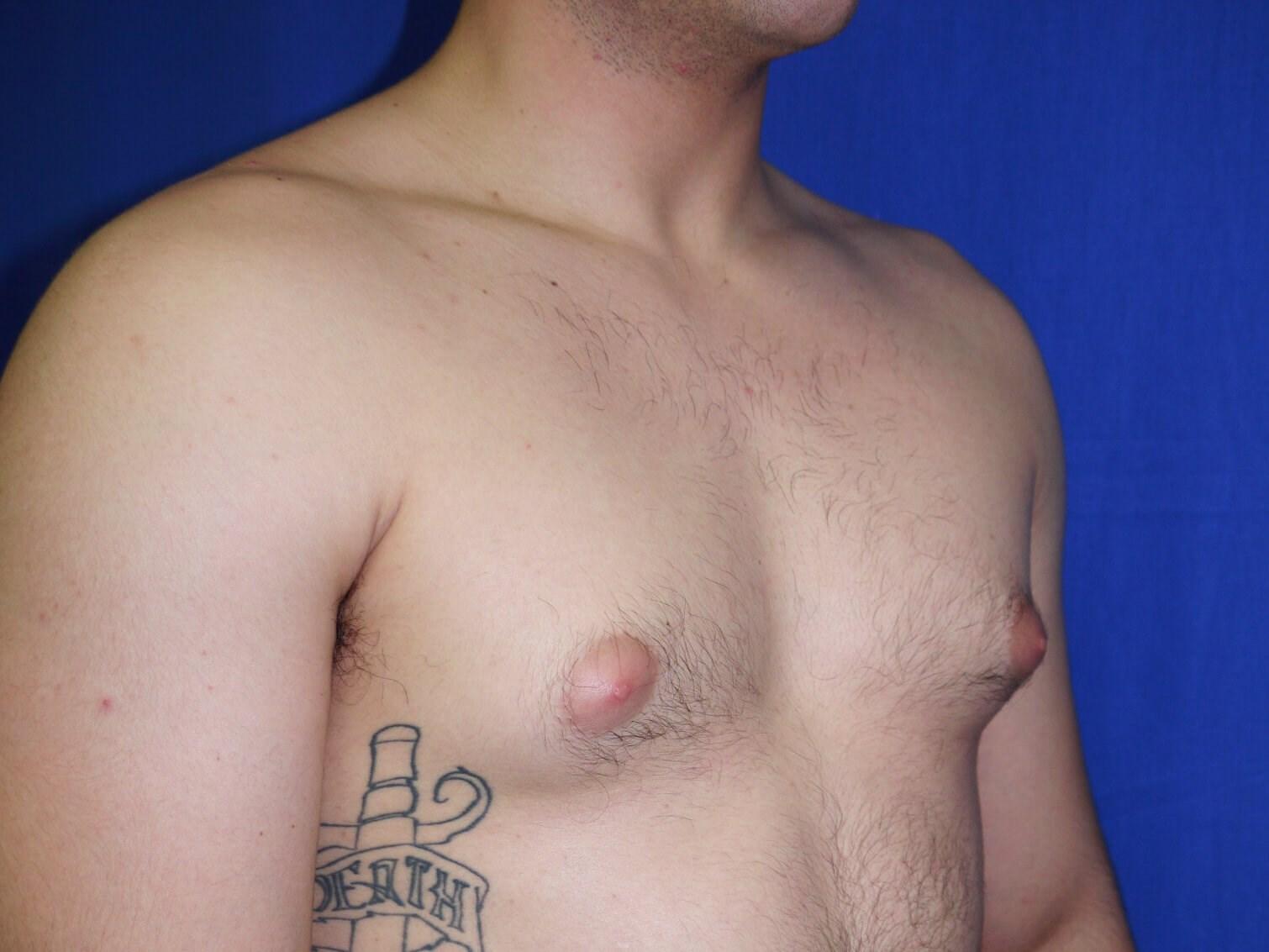 One Stitch Gynecomastia Before - Right Oblique View