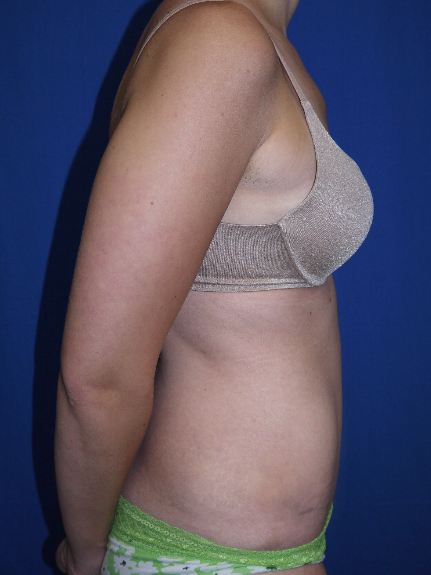 Tummy Tuck After - Dr Mata