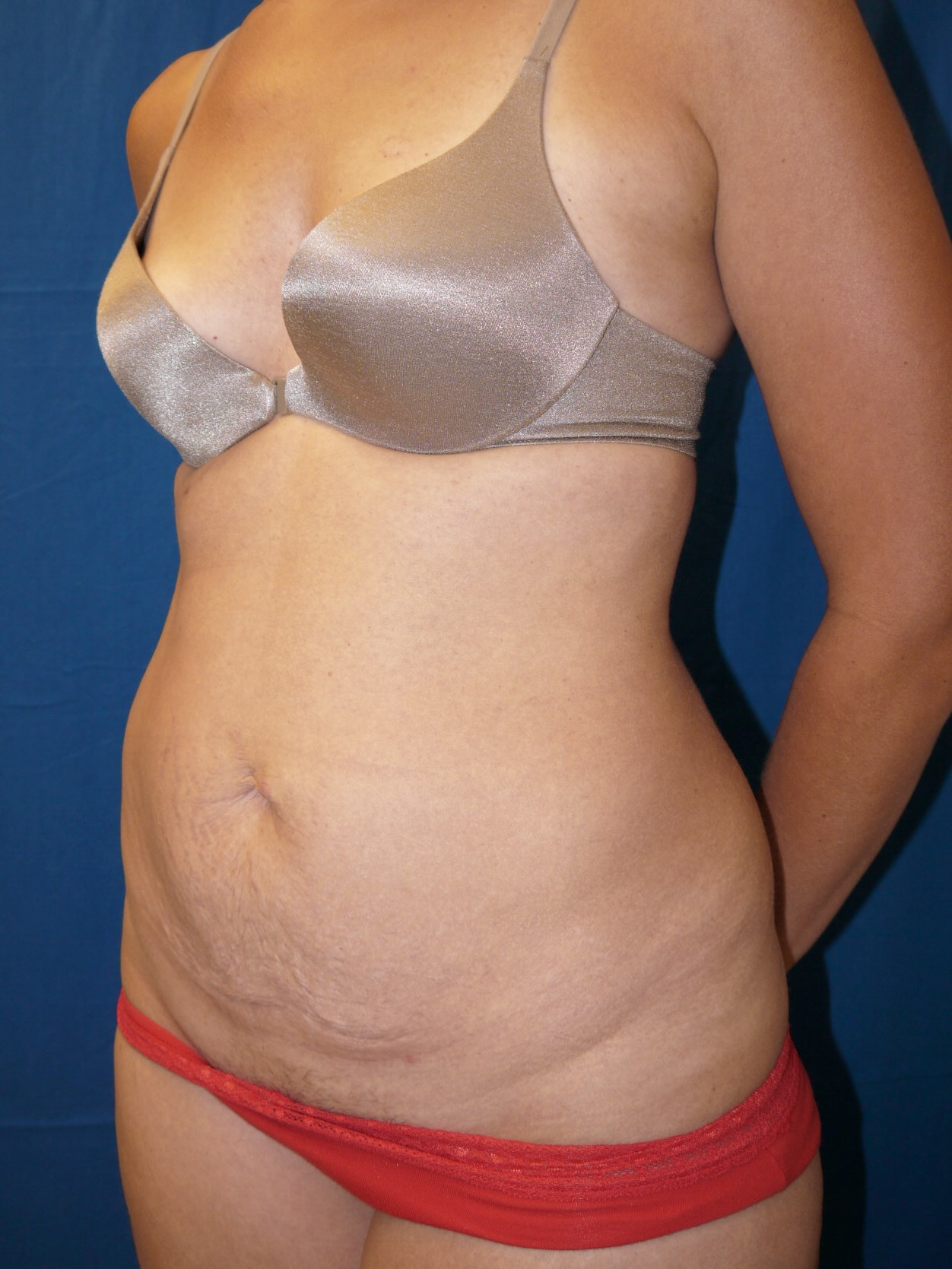 Tummy Tuck Before - Dr Mata