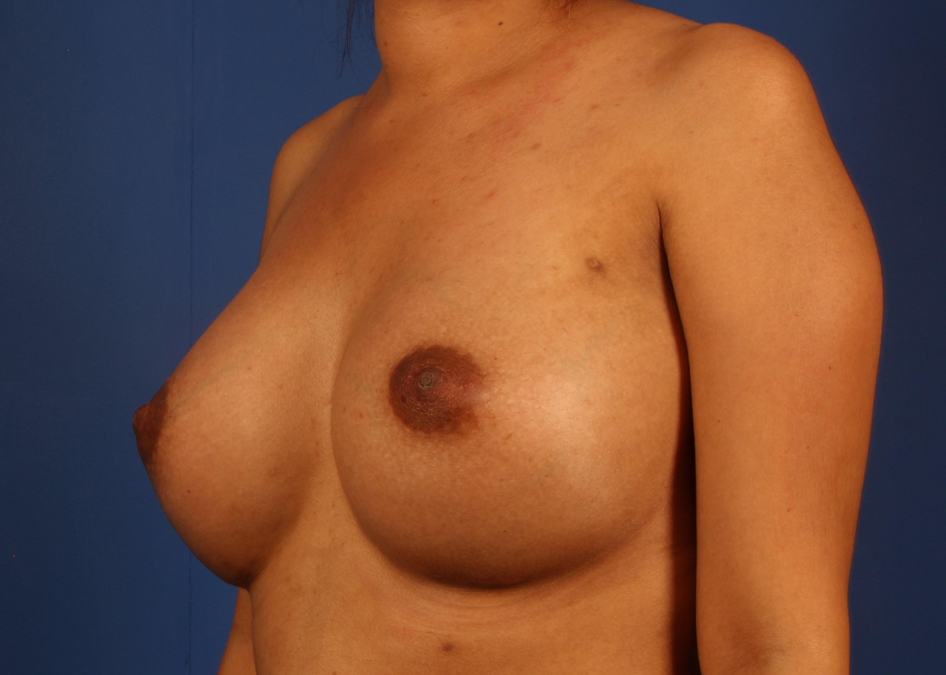 Silicone Implants After - Dr Mata