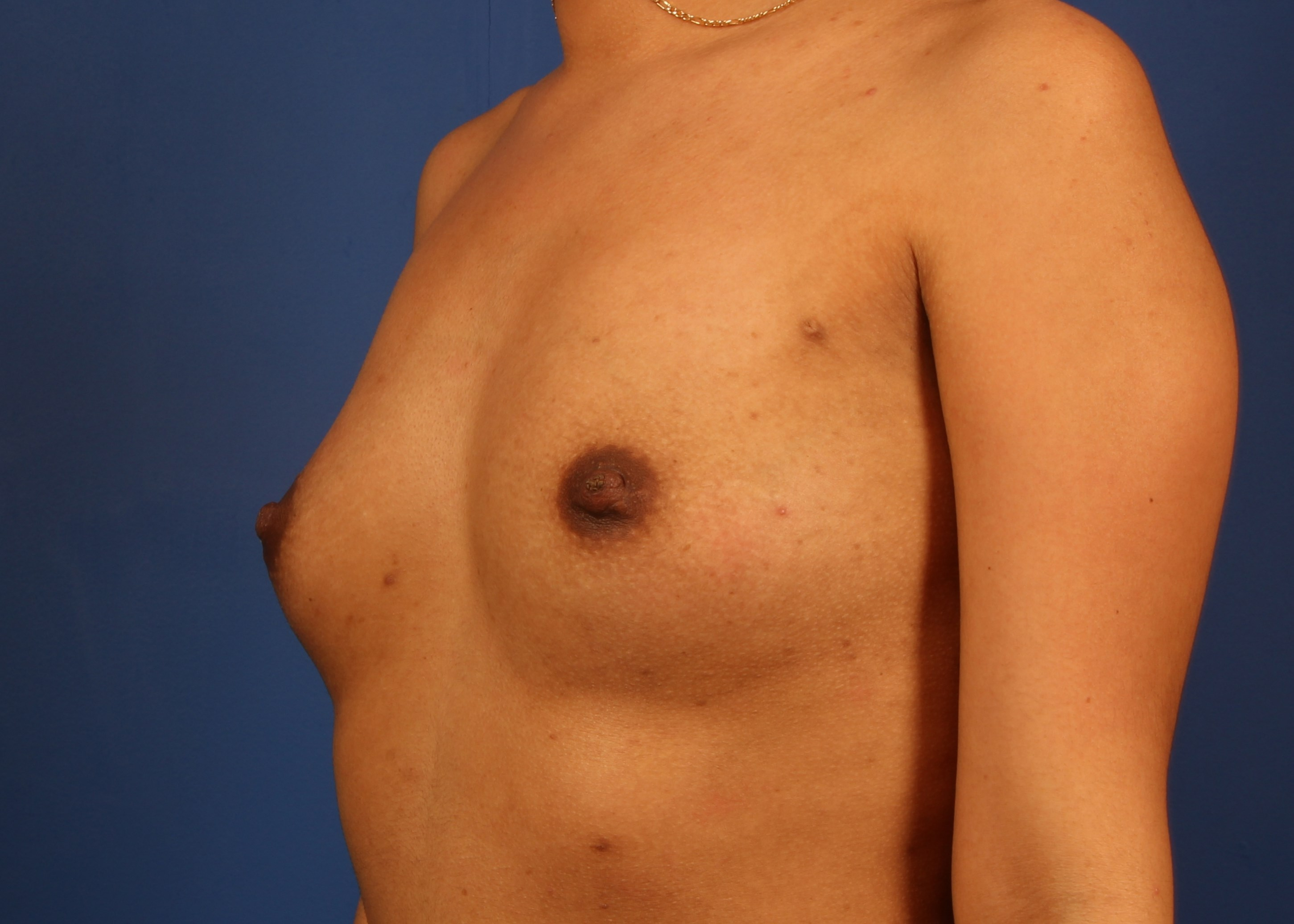 Silicone Implants Before - Dr Mata