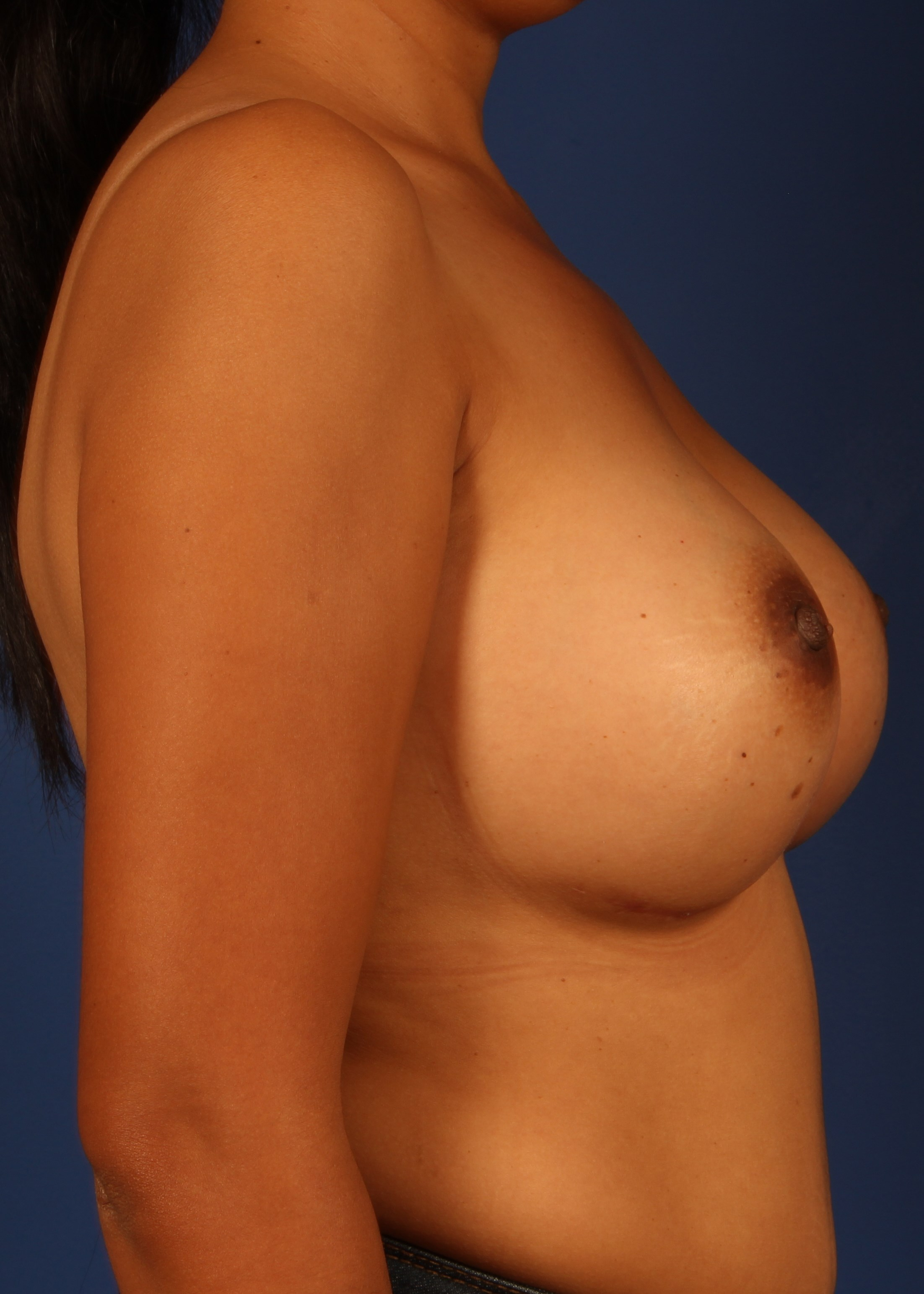 Breast Augmentation After - Dr Mata