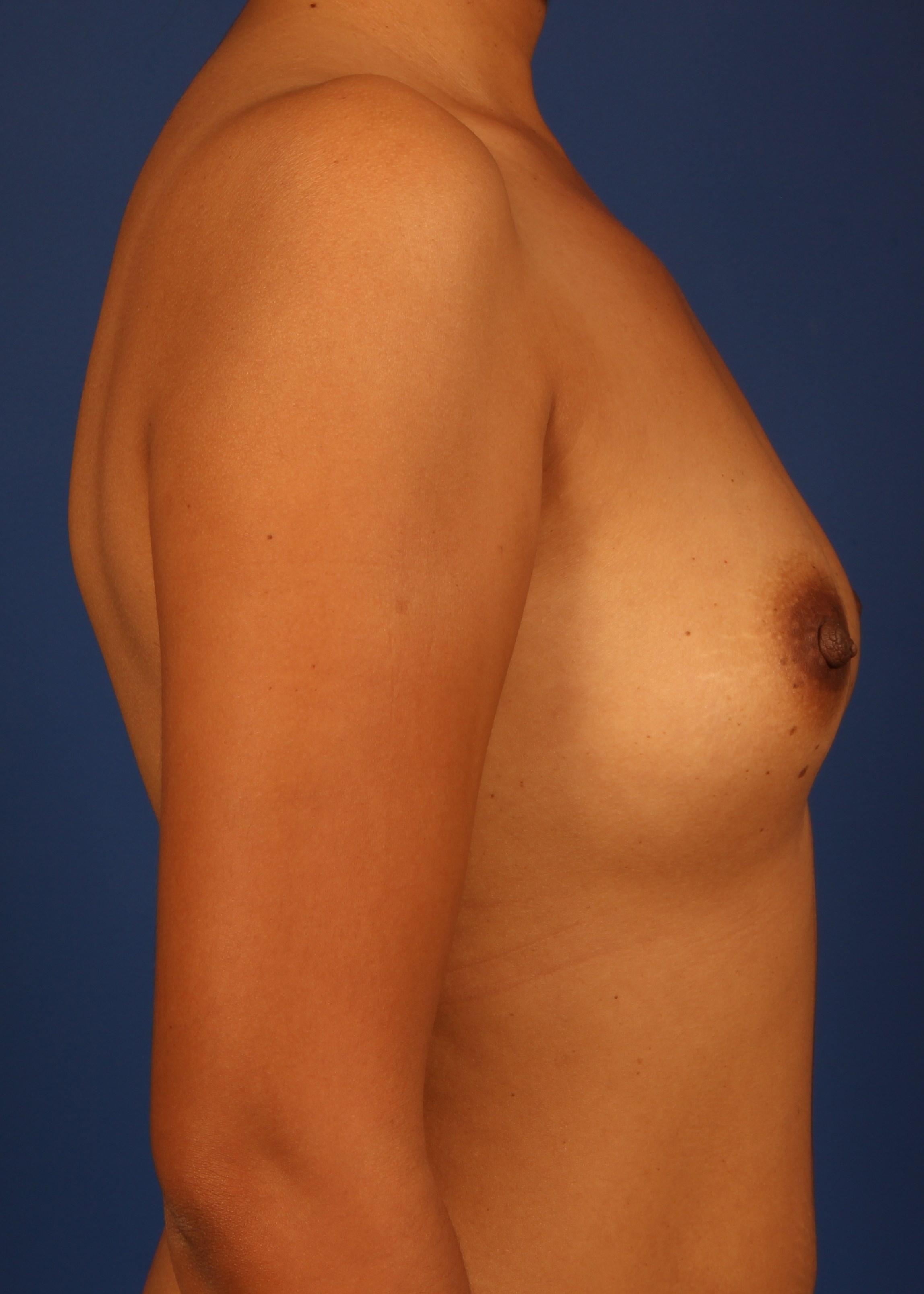 Breast Augmentation Before - Dr Mata