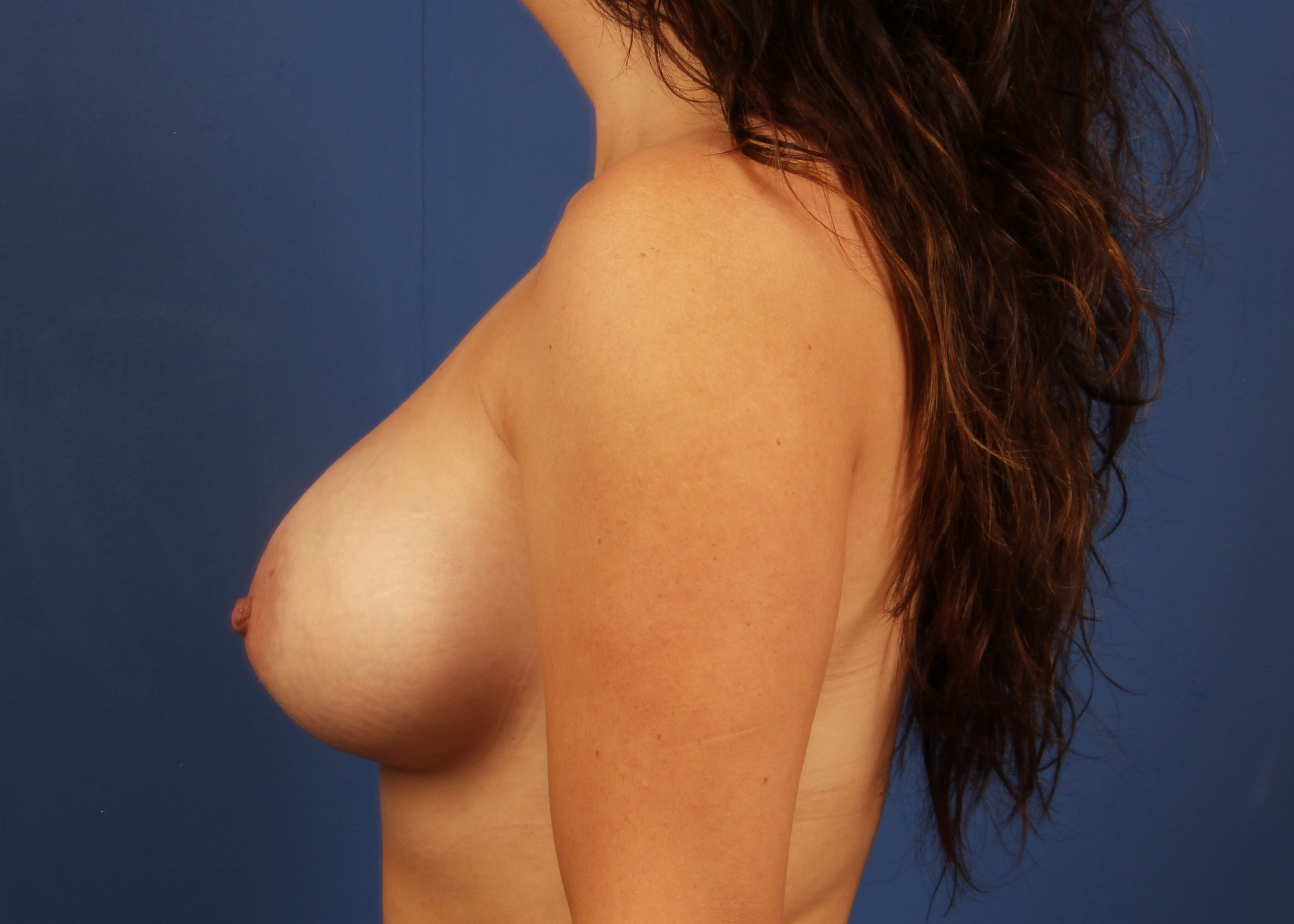 after breast implants Left View - Left View