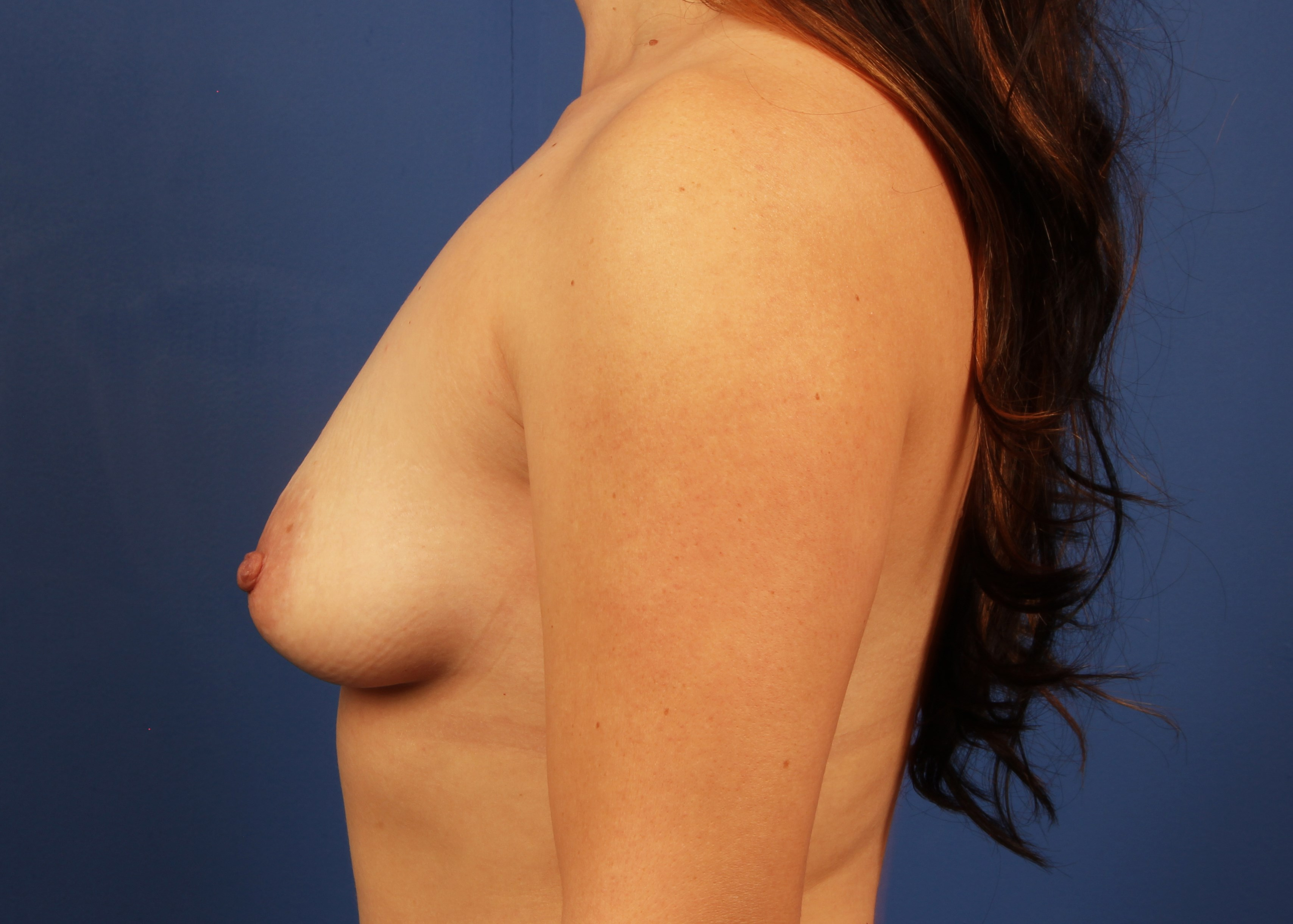before breast implants Left View - Left View
