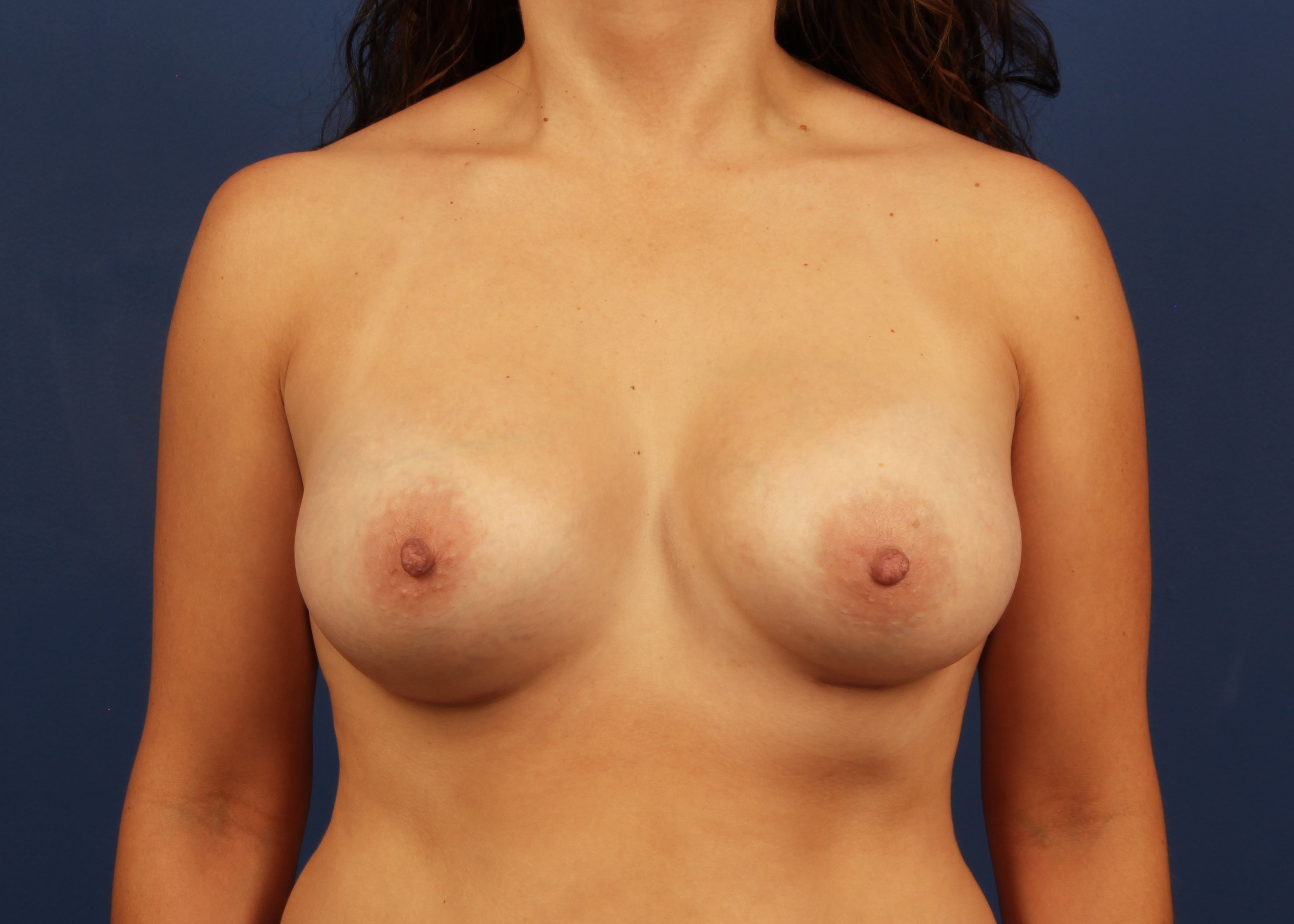 after breast implants - Dr Mata