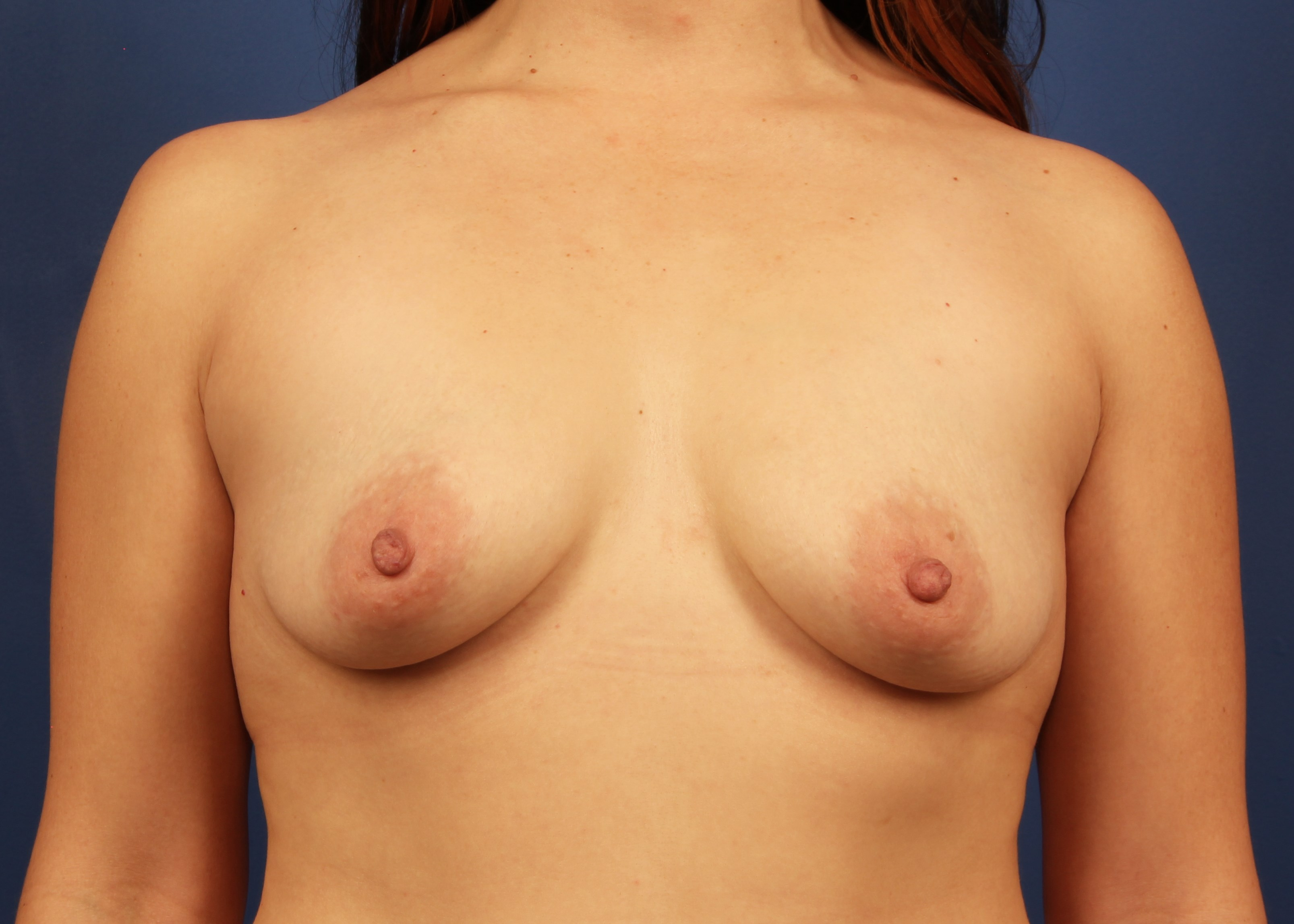 before breast implants - Dr Mata