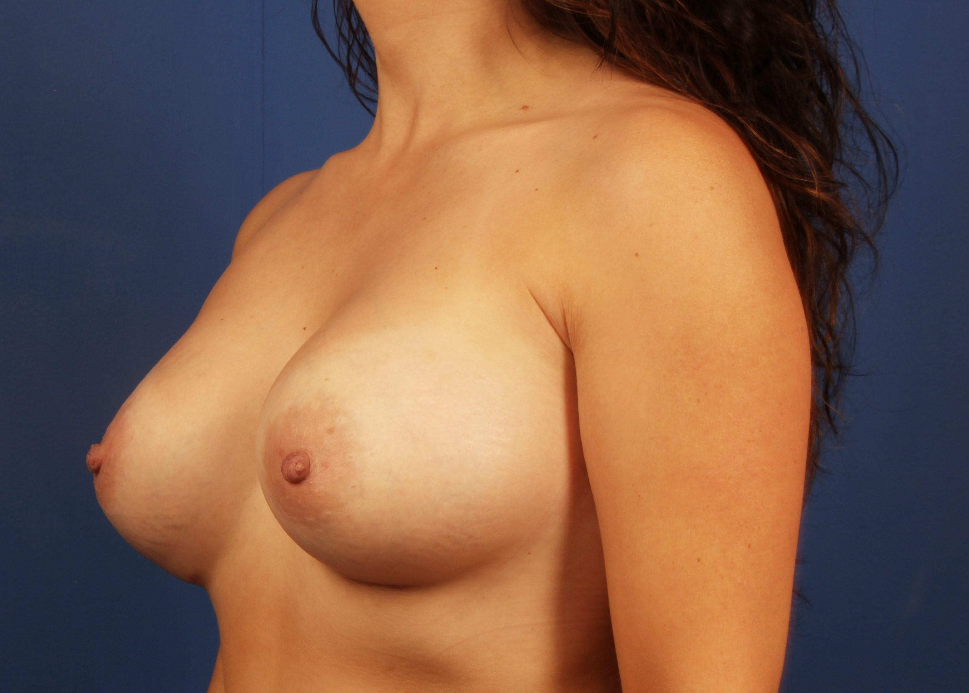 after breast implants Left Oblique View - Left Oblique View