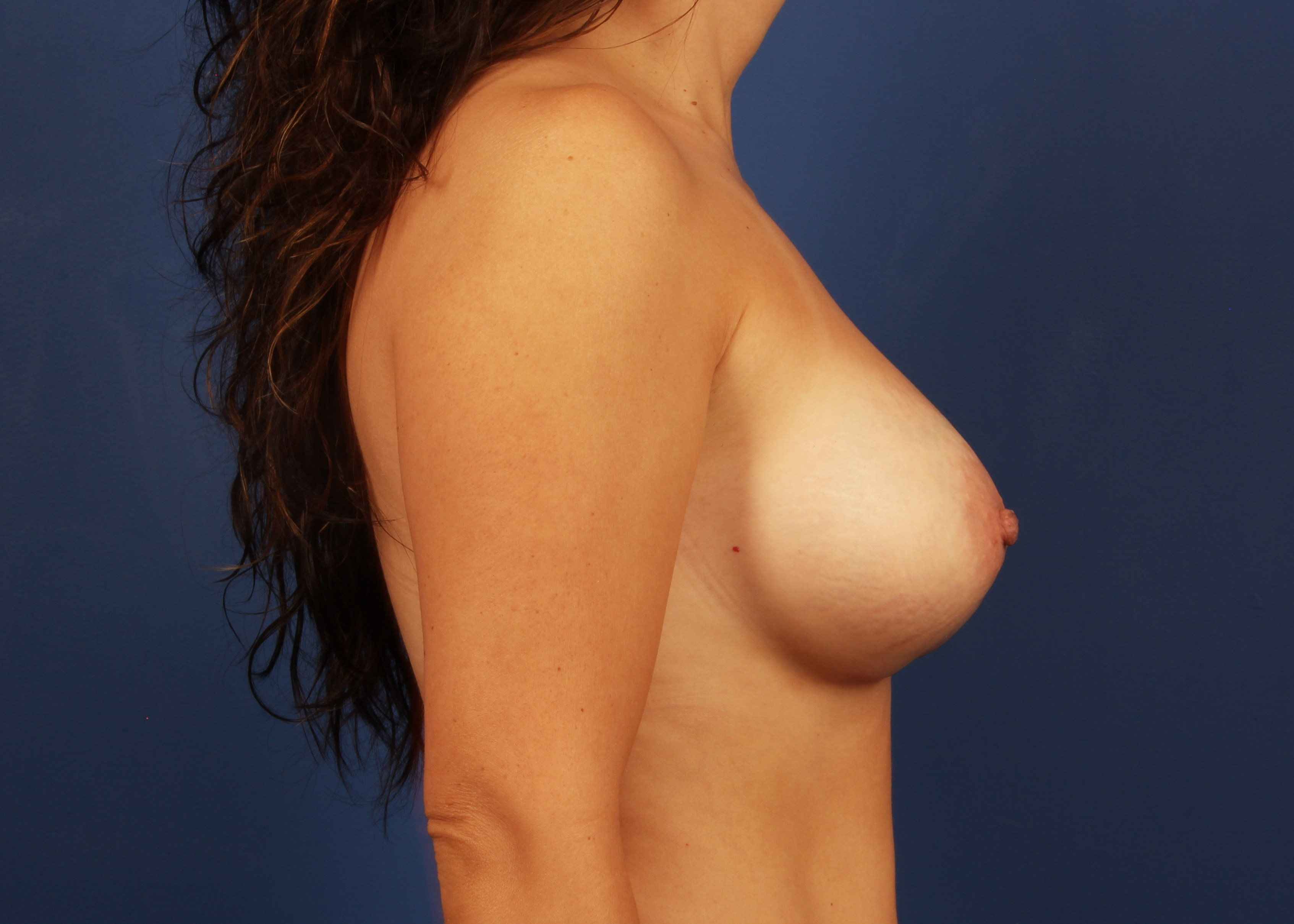 after breast implants Right View - Right View