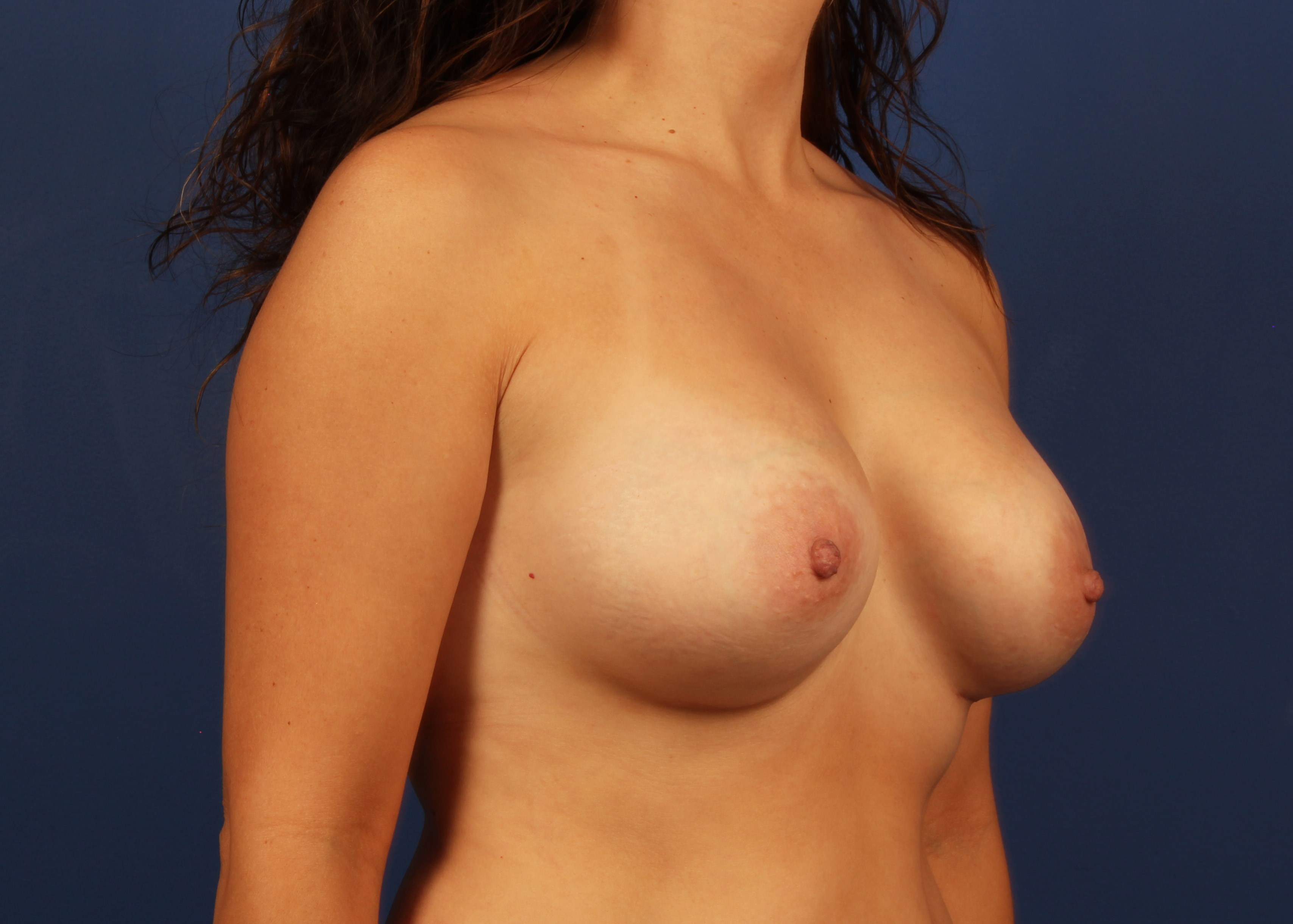 after breast implants Right Oblique View - Right Oblique View