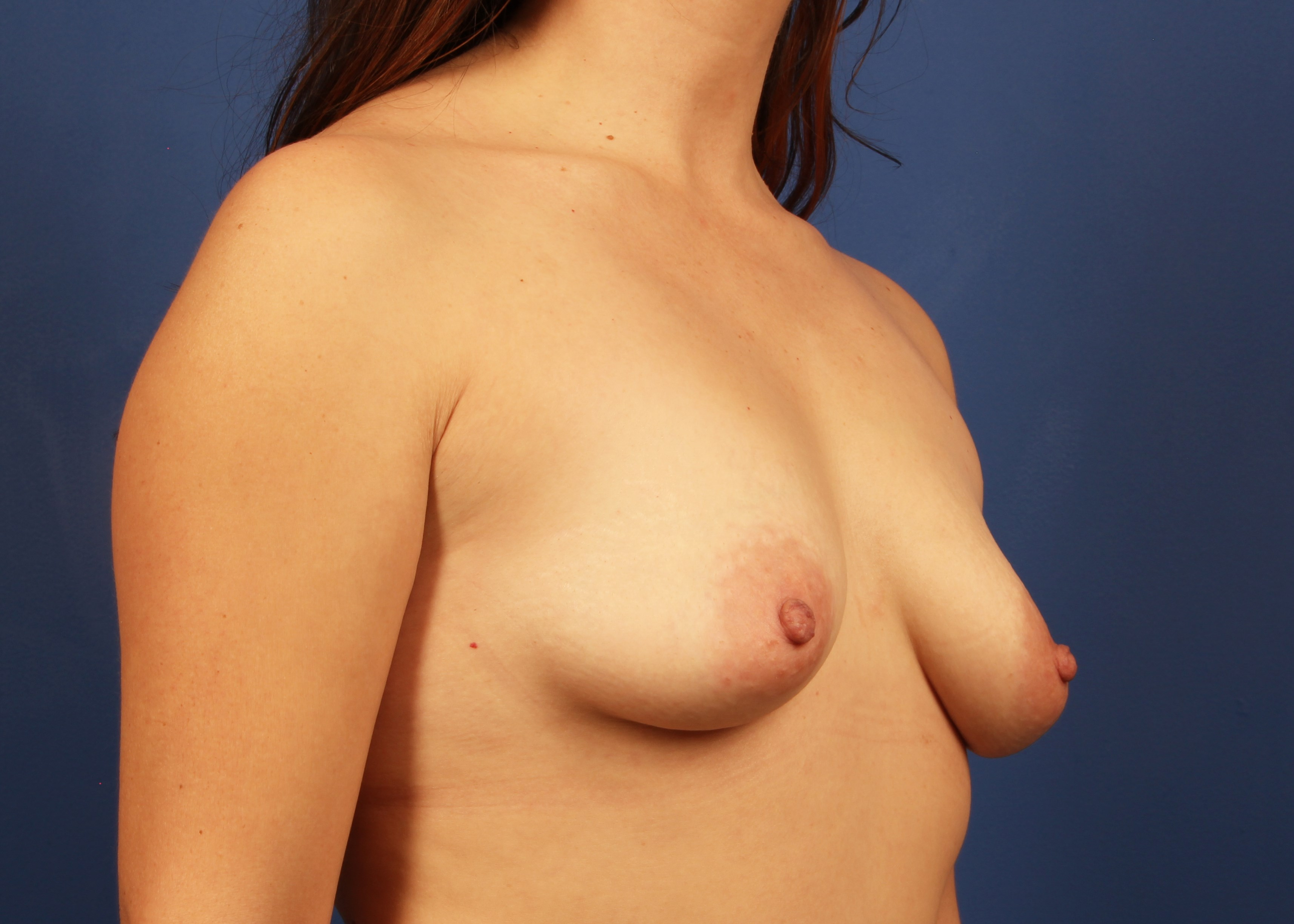 before breast implants Right Oblique View - Right Oblique View
