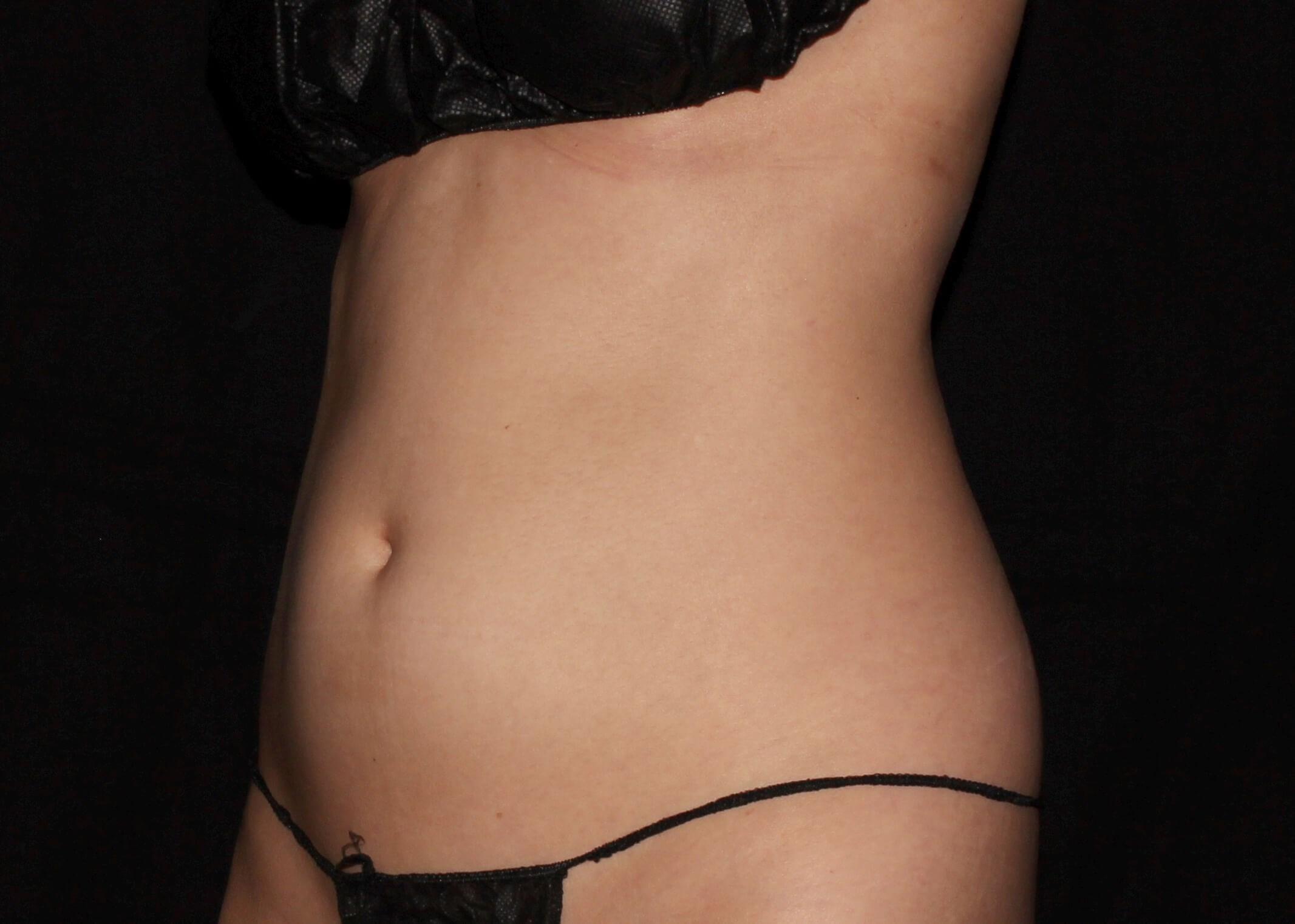 Liposuction Before - Left Oblique View