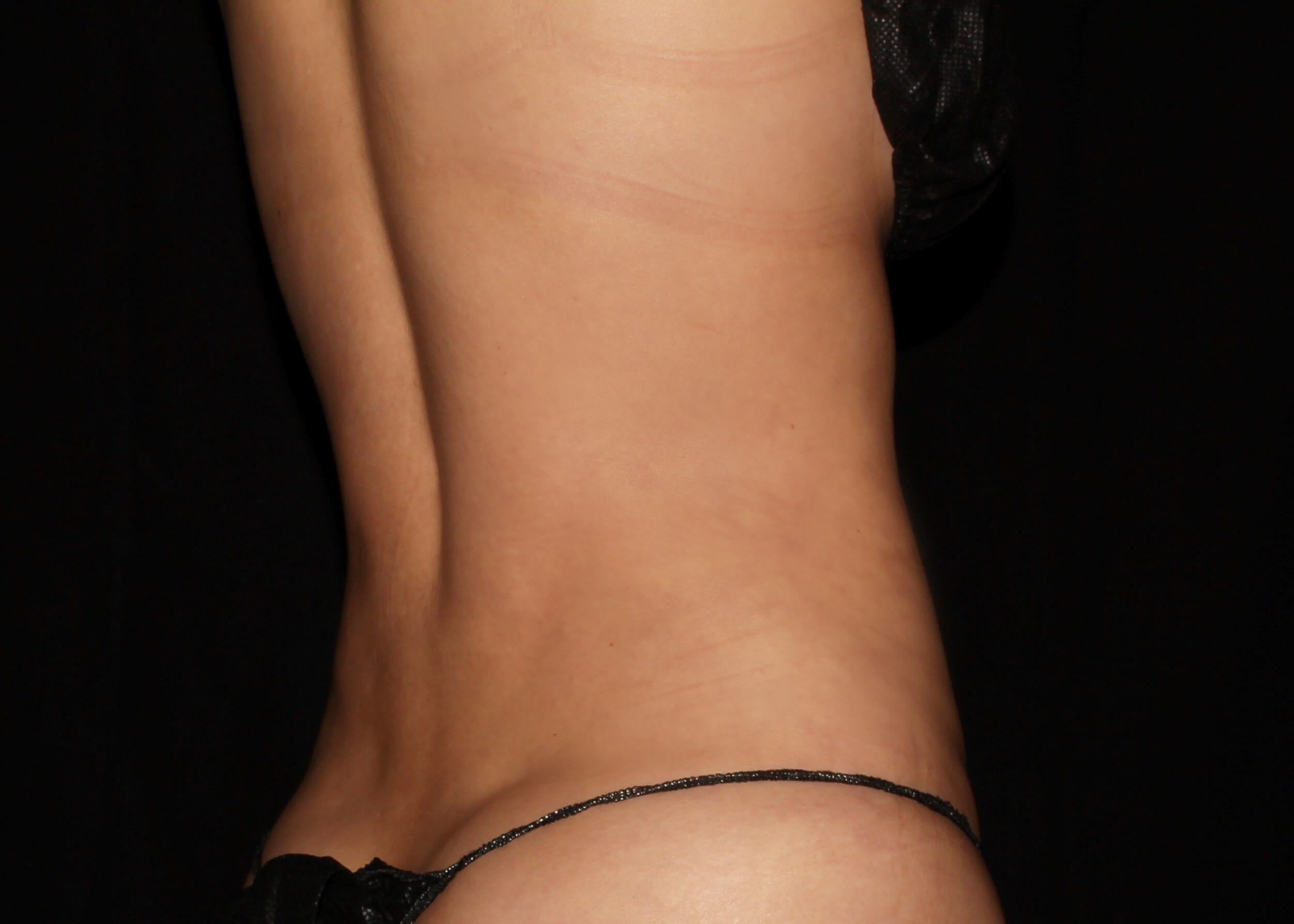 Liposuction After - Right Back View