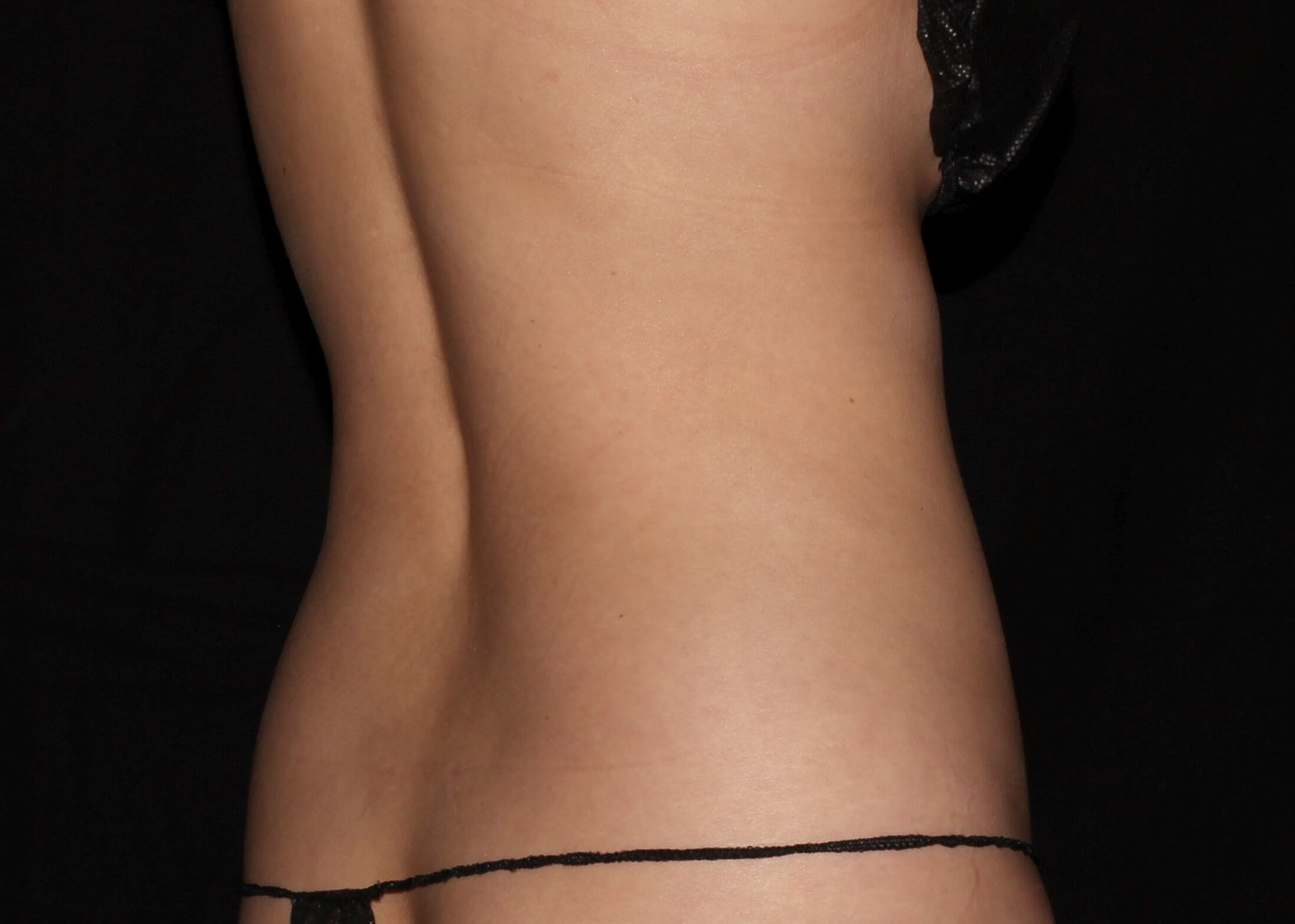 Liposuction Before - Right Back View