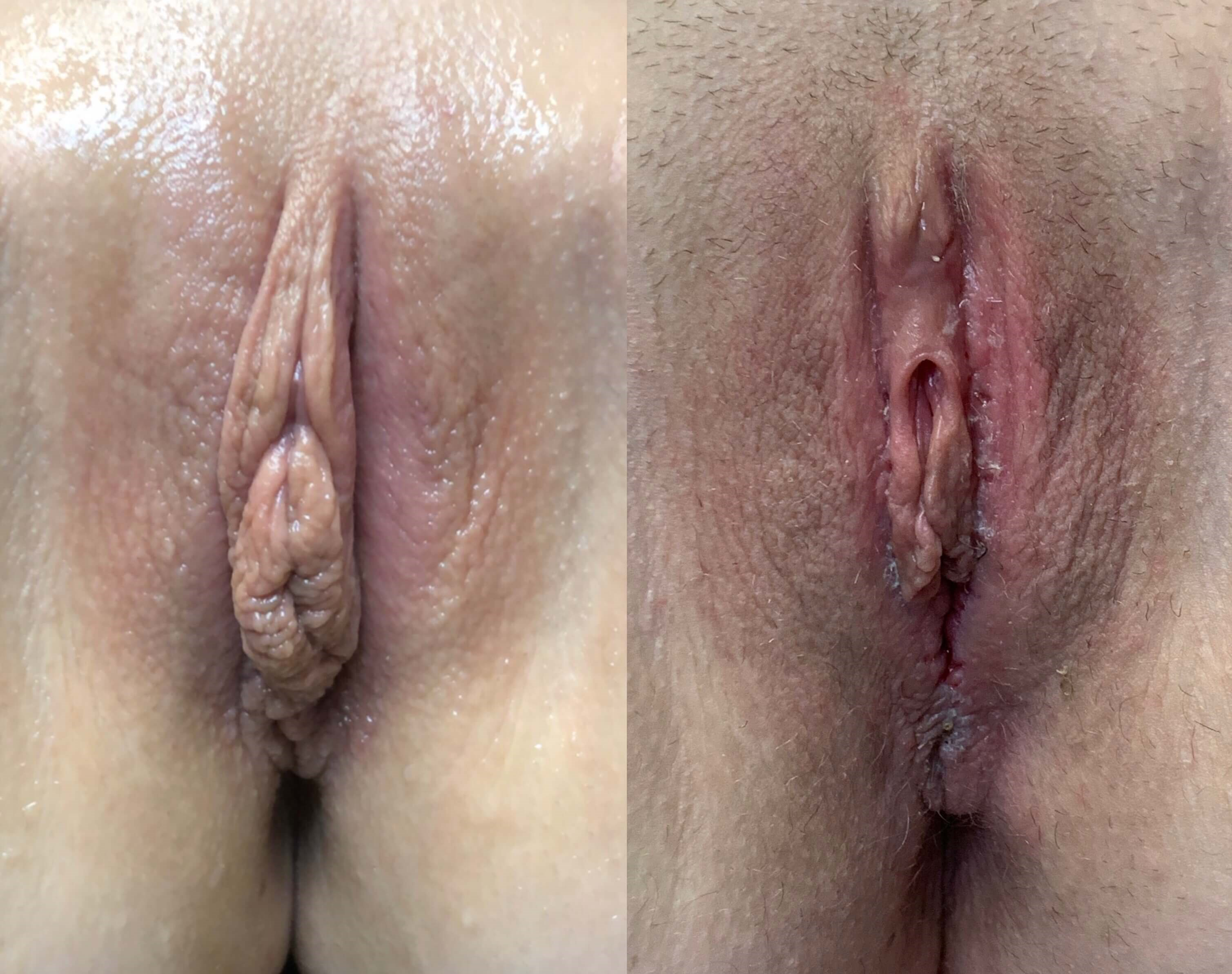 Labiaplasty with Clitoral Hood Reduction Before - Labiaplasty