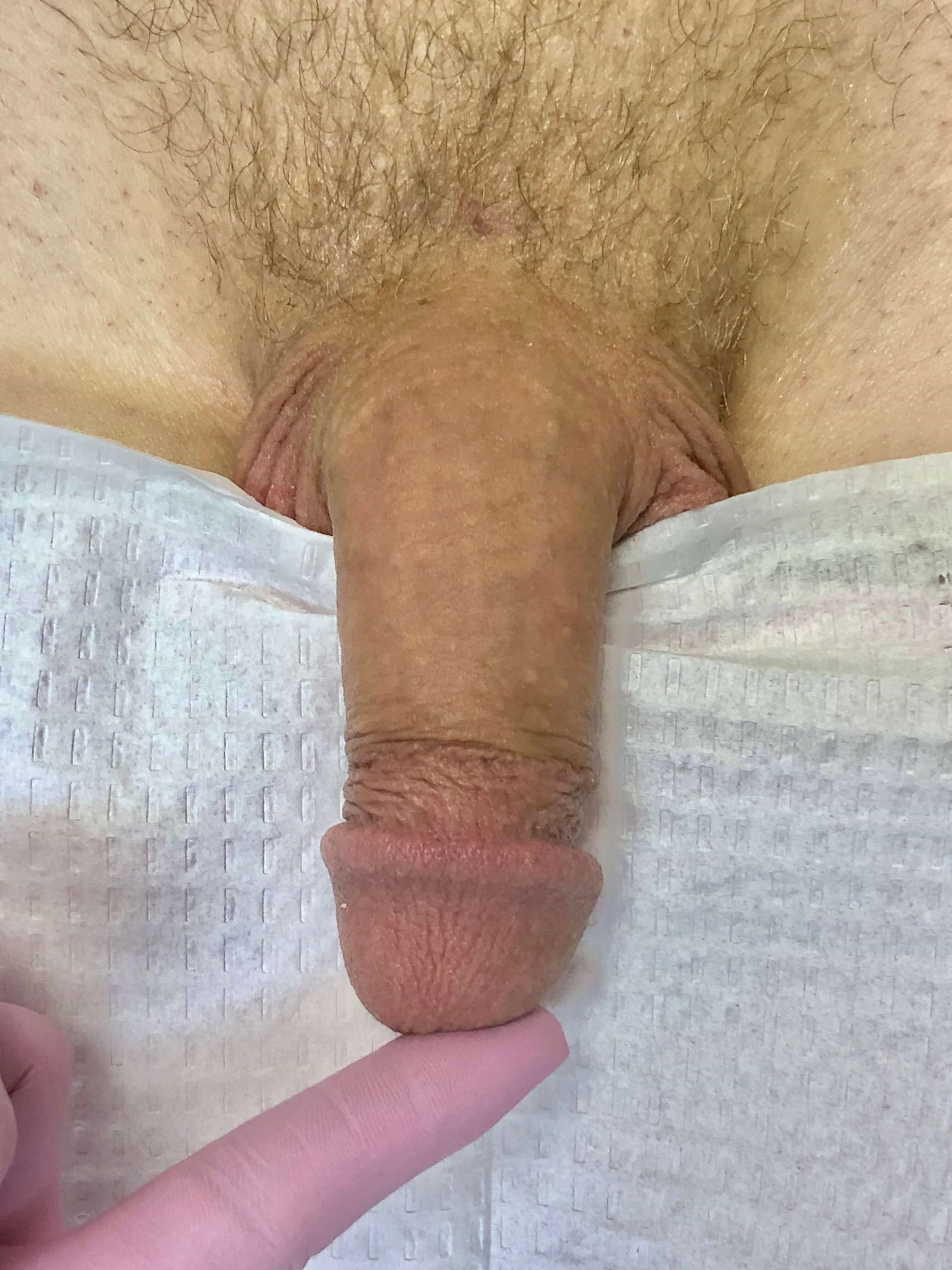 Male Enhancement with Fillers Before - Male Enhancement with Filler