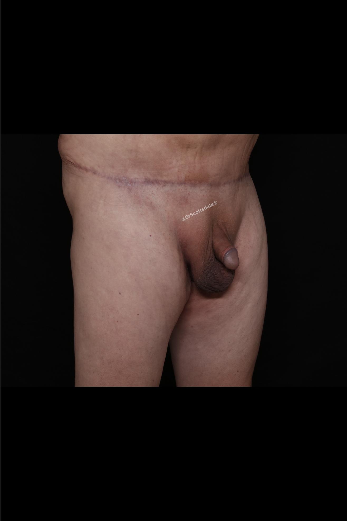 After Male Enhancement - Monsplasty & Tummy Tuck
