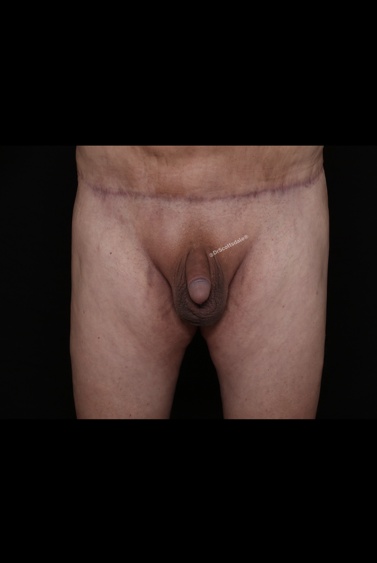 After Male Enhancement