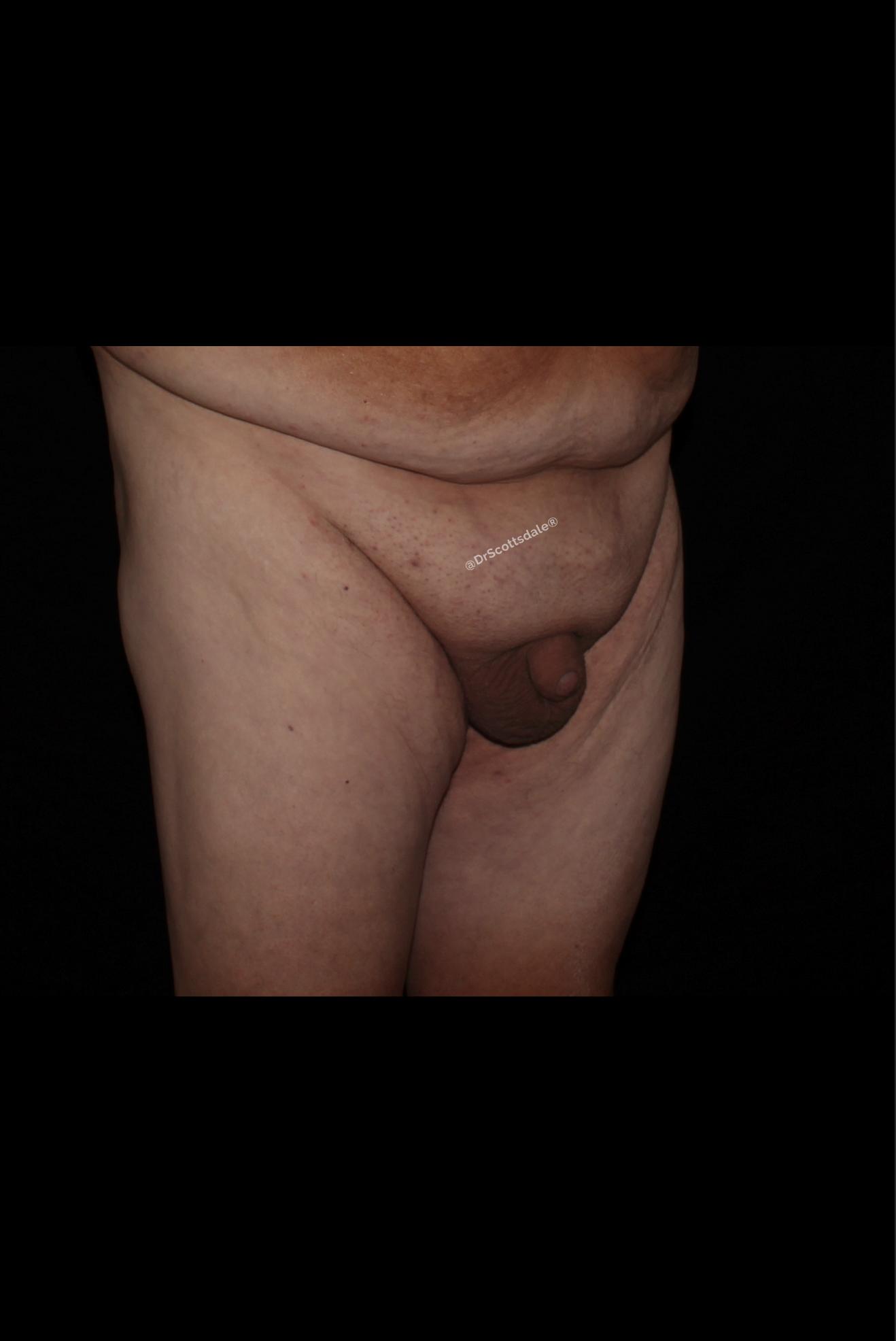 Before Male Enhancement - Monsplasty & Tummy Tuck