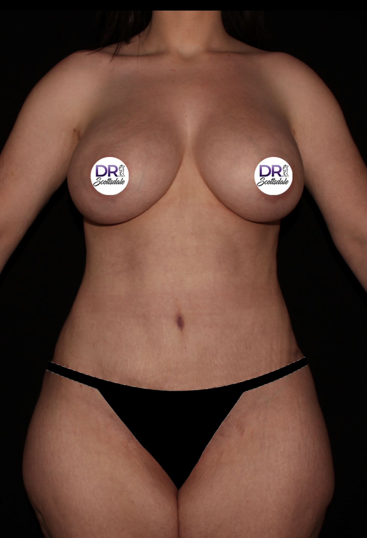 After Tummy Tuck - Tummy Tuck with breast augmentation