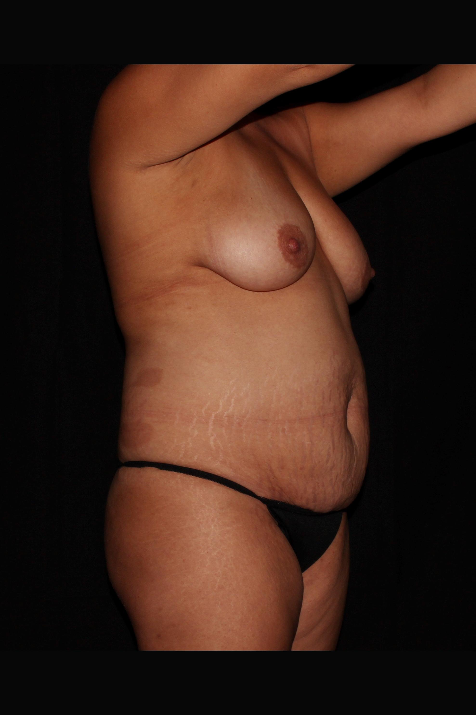 Before Tummy Tuck - TUMMY TUCK WITH LIPO 360