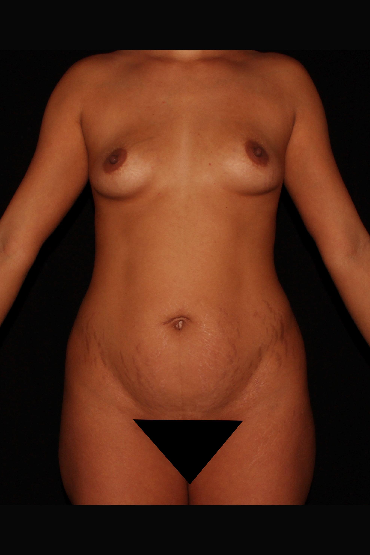 Before Tummy Tuck - Skinny Tummy Tuck