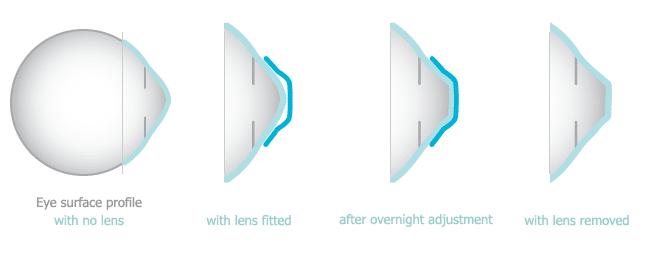 sleep sight lenses