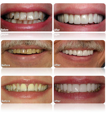 dental veneer before and after