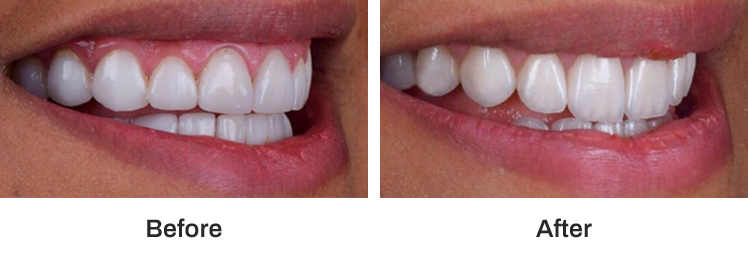 before and after dental procedure