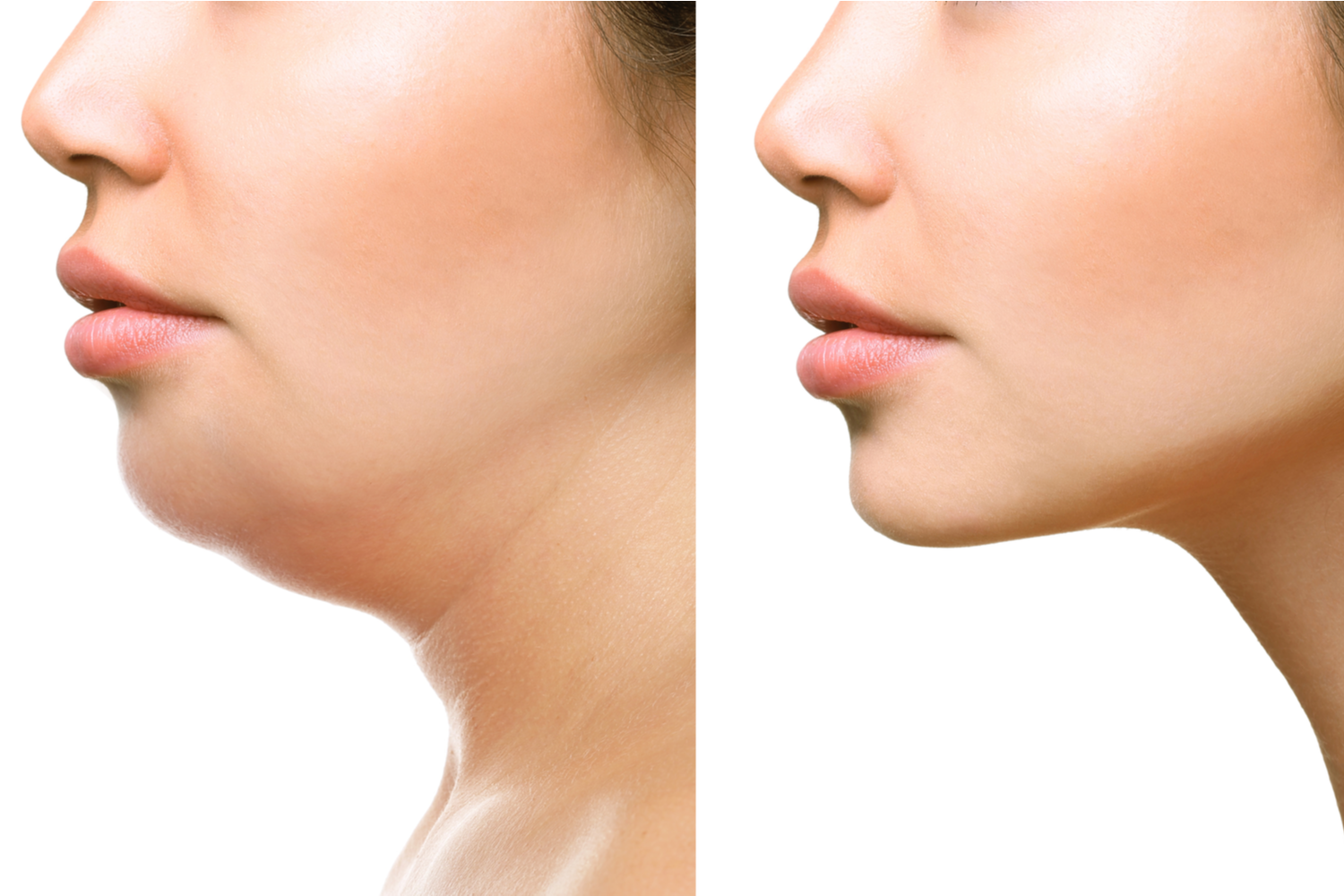 Fixing a Double Chin With Kybella