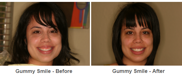 gummy smile results