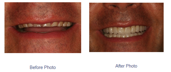 smile makeover coral gables