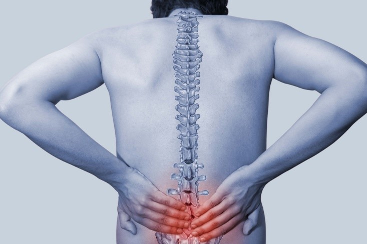 What are treatment options for a herniated lumbar disc?