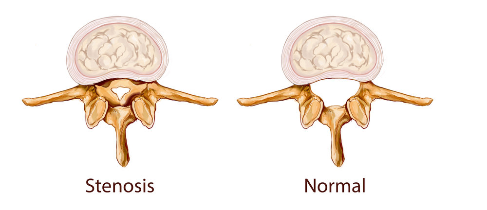 EFFECTIVE TREATMENT FOR SPINAL STENOSIS