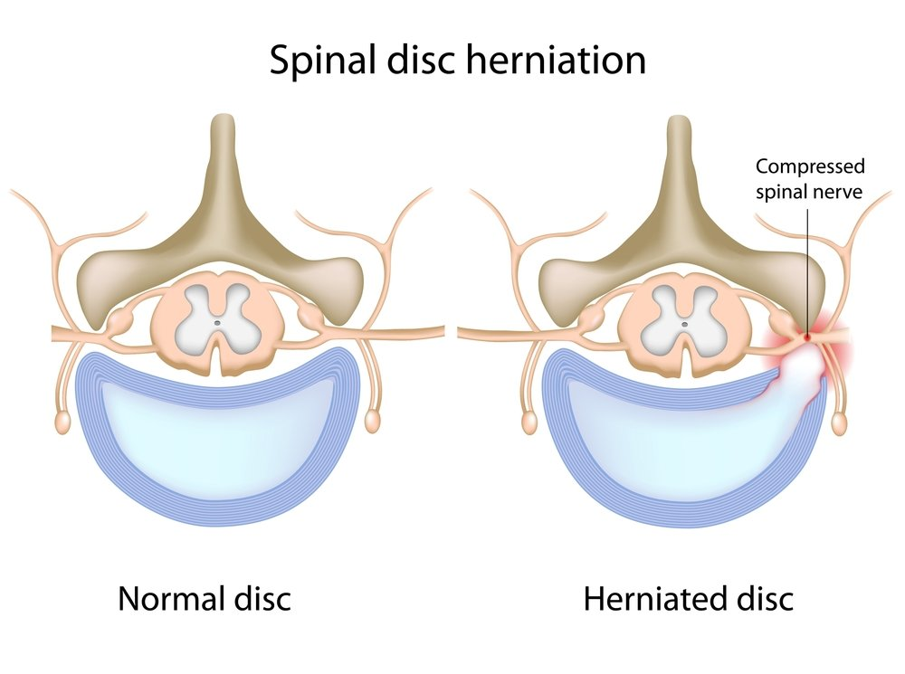 TREATMENT OPTIONS FOR HERNIATED DISC