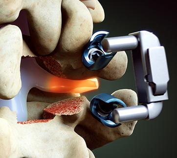 The Minimally Invasive TLIF Procedure