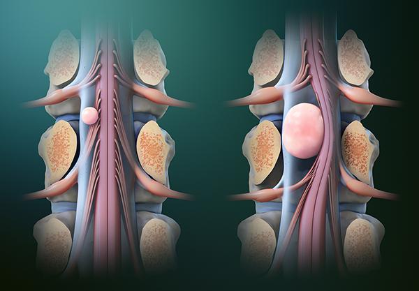 Tumor Cord Removal