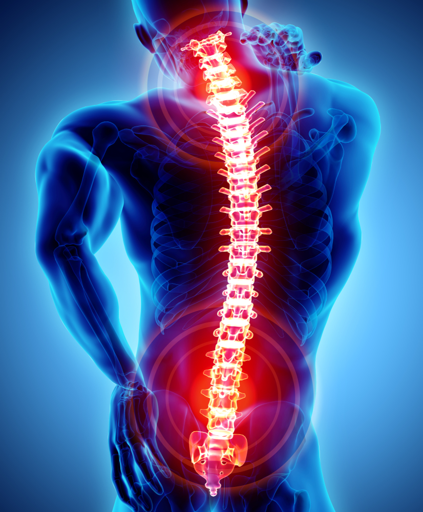 What are Some Common Indications for Cervical Spine Surgery?