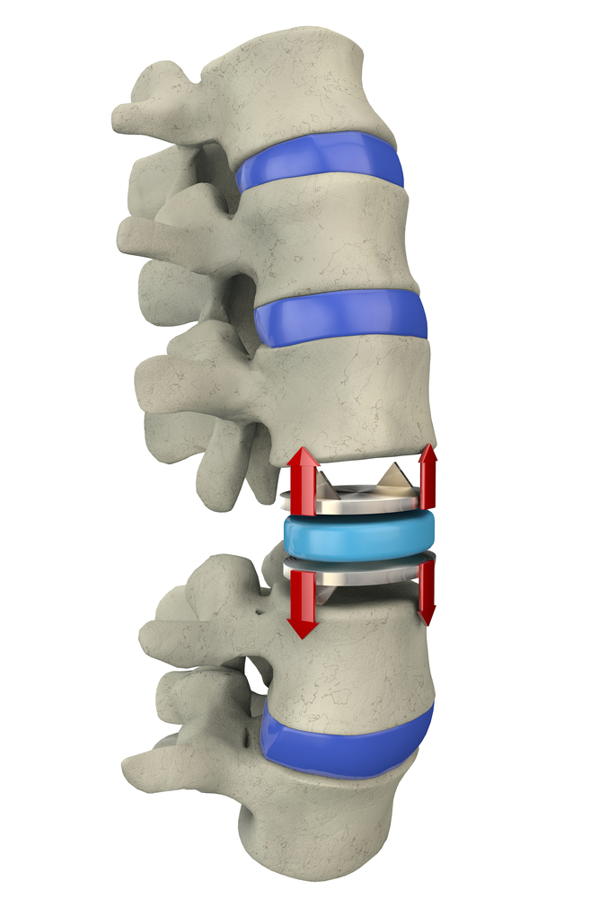 Is Cervical Disc Replacement Right For You?