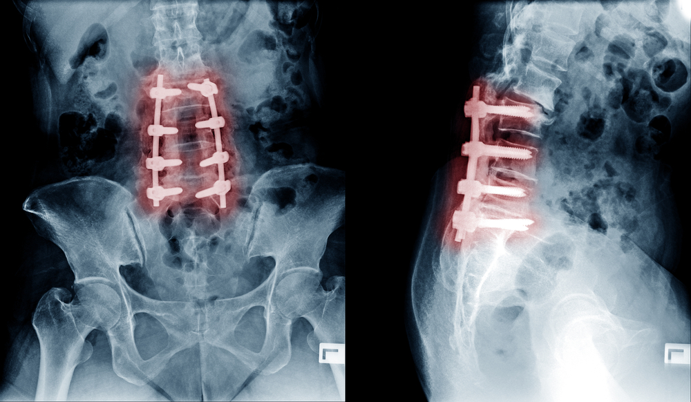 Outpatient Procedures for Lumbar Laminectomy