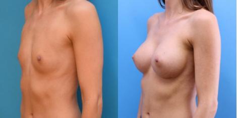 blog/navigating-options-for-breast-augmentation
