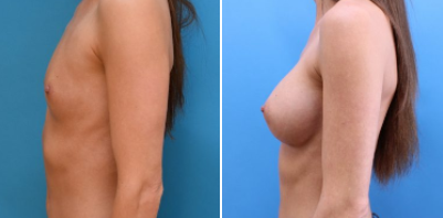 blog/how-durable-are-breast-implants