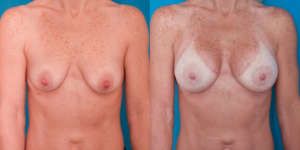 blog/what-is-the-best-breast-lift-incision-option