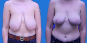 Blog/How-A-Breast-Reduction-Can-Improve-Your-Life