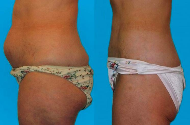 blog/liposuction-faq