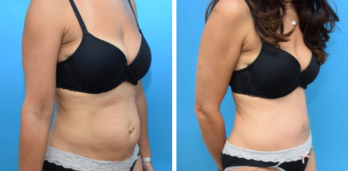 blog/get-the-body-you-deserve-with-a-mommy-makeover