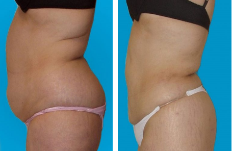 Blog Non Invasive Liposuction Vs Standard Liposuction Galanis Plastic Surgery